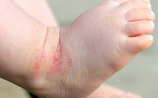 Полезные травы для кожи от воспалений и дерматита