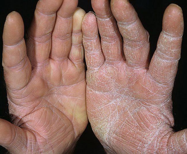 Витамины при сухости кожи ног и рук в руки