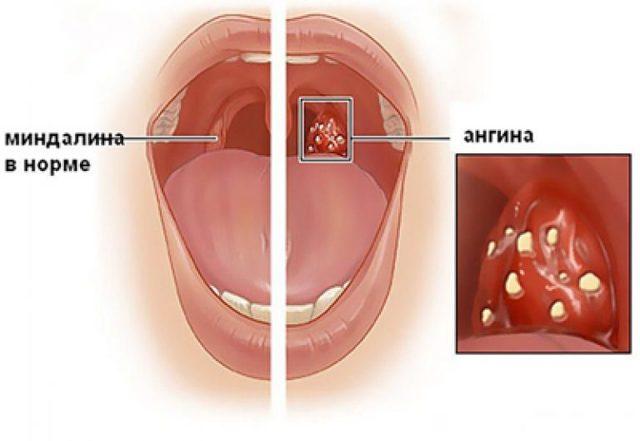 Ангина — лечение в домашних условиях, симптомы